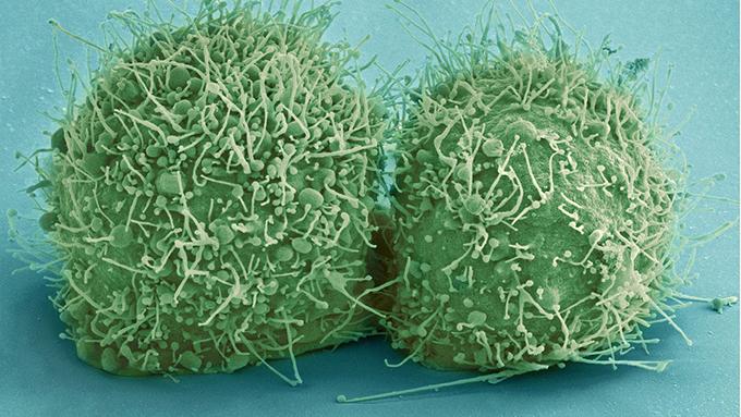 ウイルスを活性化させないための加湿器の役割 湿度と体感温度の関係