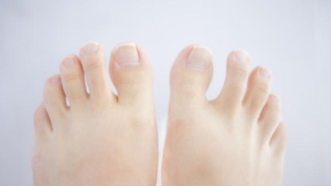 足の親指の巻き爪は何でなるの? 医師が回答